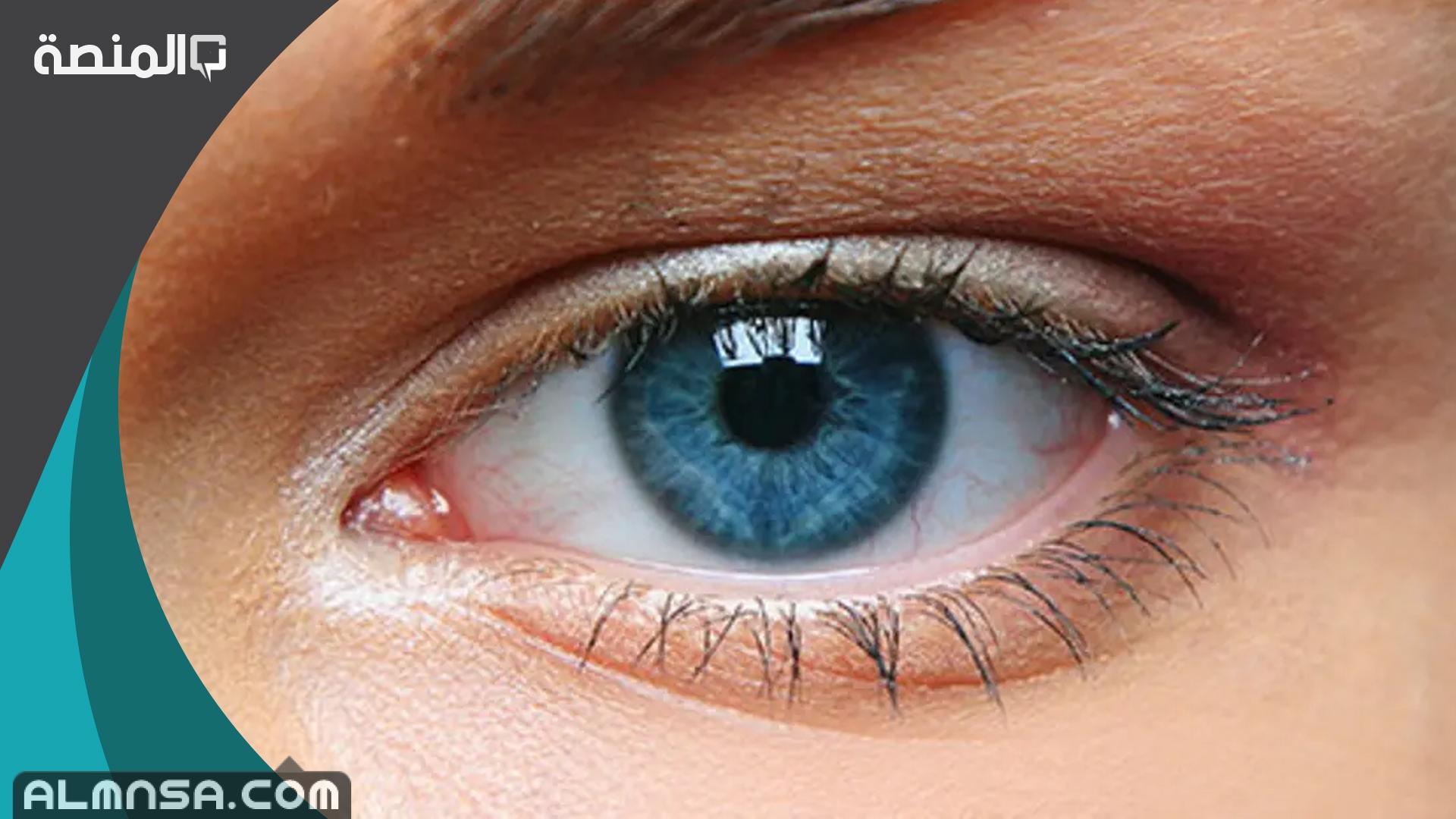 تفسير رؤية جحوظ العين في المنام المنصة