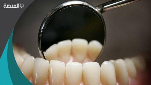 هل حشو الاسنان يفطر الصائم