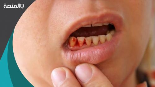 هل خلع الاسنان يفطر الصائم