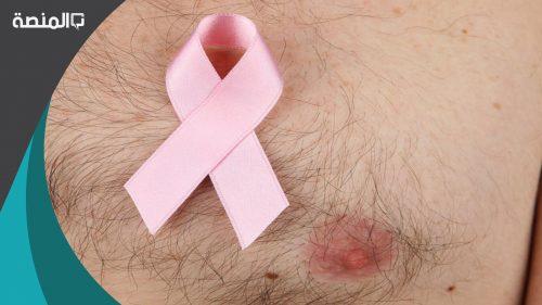 هل يصيب سرطان الثدي الرجال